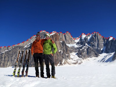 tooth_traverse_06