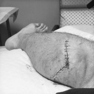 Nalle Hutkataival Bein Unfall